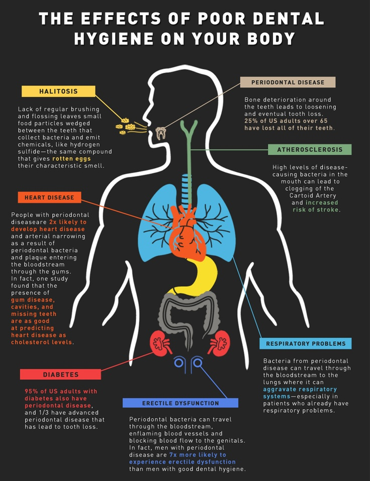 bad hygiene inforgraphic The Effects of Poor Dental Hygiene (Infographic)